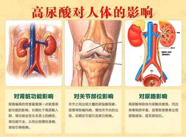 记尿酸对身体的危害.png