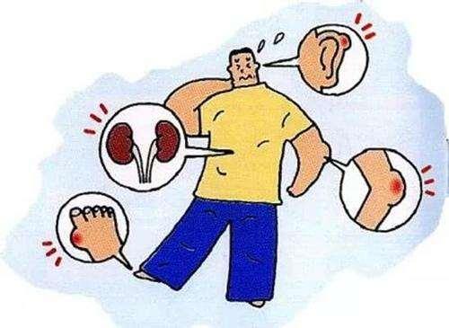 痛风症状.jpg