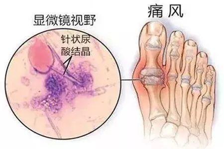长痛风石的根本原因是什么?如何才能消除痛风石?