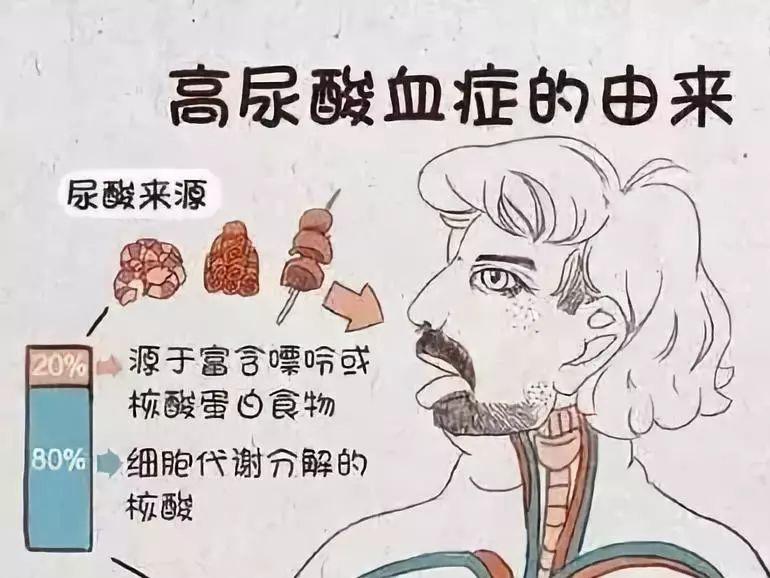 尿酸高有哪些危害?远不止是痛风严重时甚至可能引发肾衰竭!