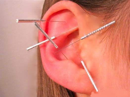 耳针法.jpeg