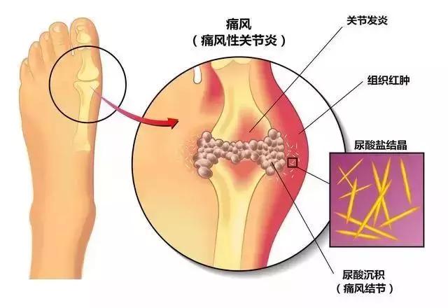 痛风石尿酸结晶怎么能溶解排出?