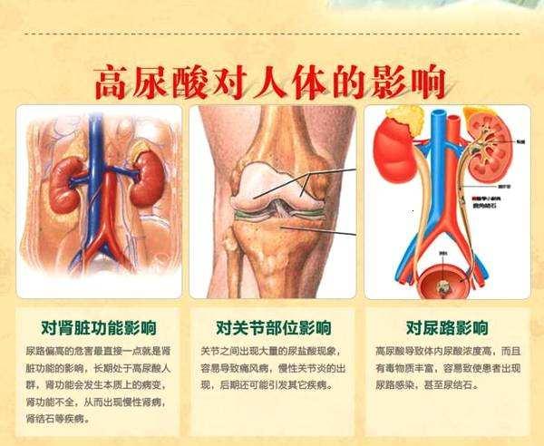 尿酸高的危害是什么?生活中该怎么降尿酸高?