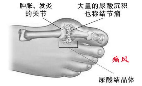 痛风高尿酸血症都是吃出来的吗?怎样才能有效控制痛风?