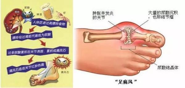 痛风到底能不能治愈呢?痛风怎么用药好?