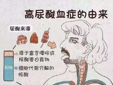 痛风为什么一定要控制尿酸?