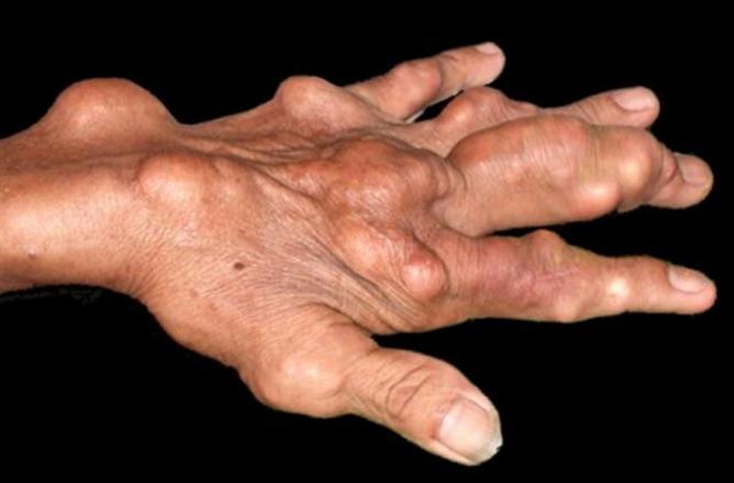 小分子肽与痛风、痛风石溶解的调理