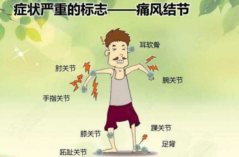 尿酸升高就一定会得痛风吗?关节红肿是不是痛风?