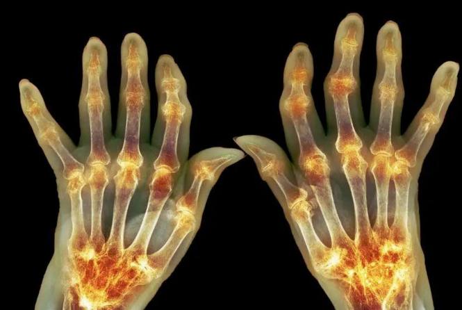 干细胞与痛风,干细胞疗法在治疗痛风性关节炎中的应用